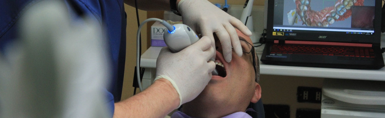 Root Canal Costs and Financing Options